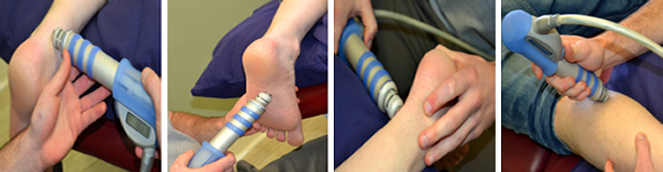 ESWT Shockwave Therapy