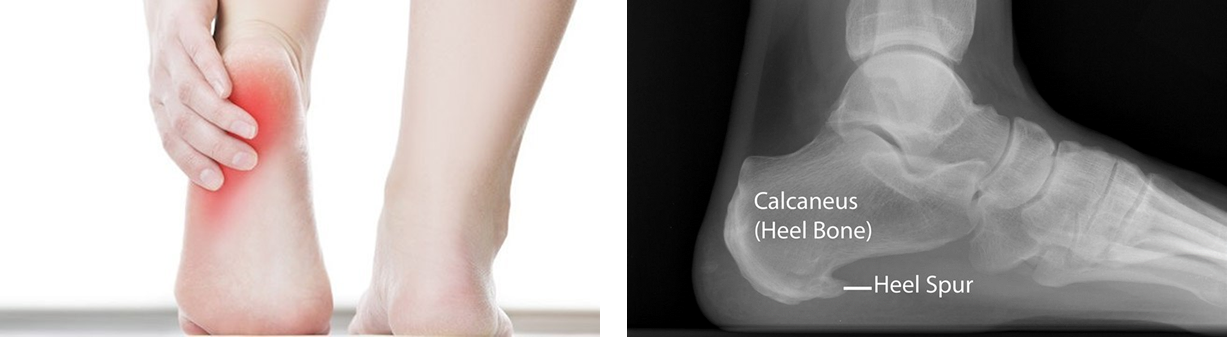 What Are Heel Spurs?